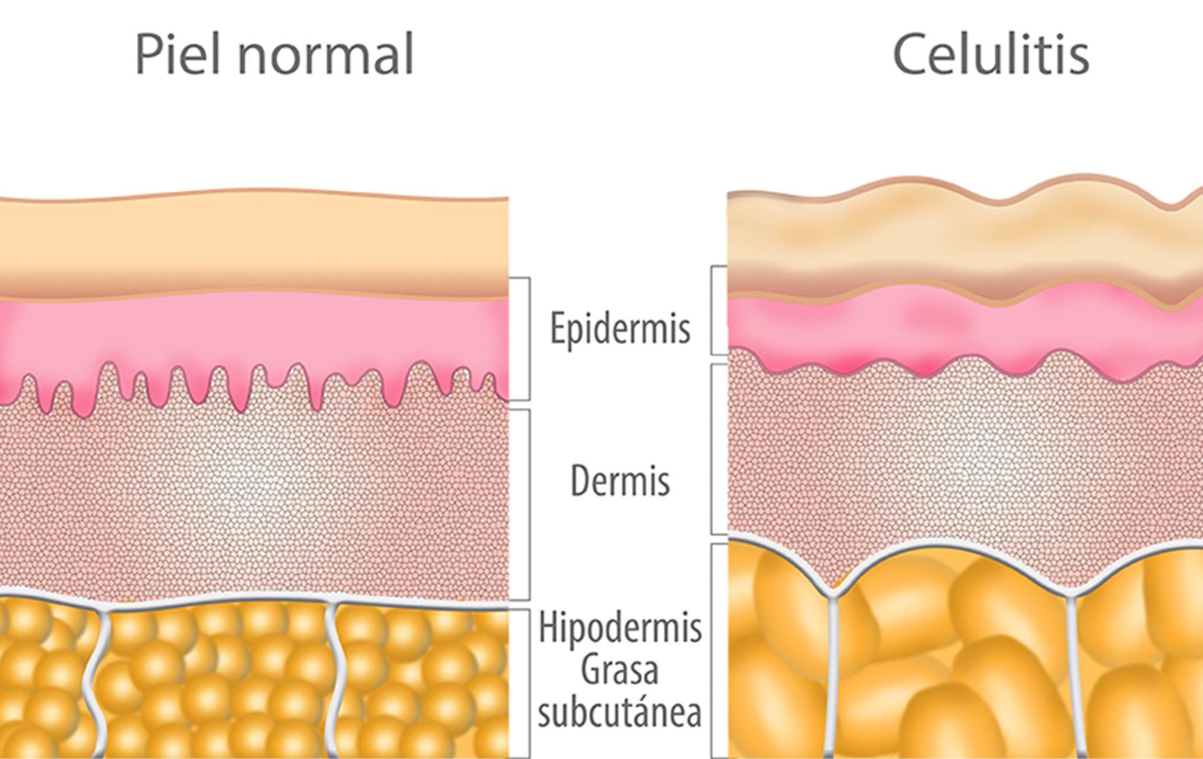 foto medestec celulitis 1